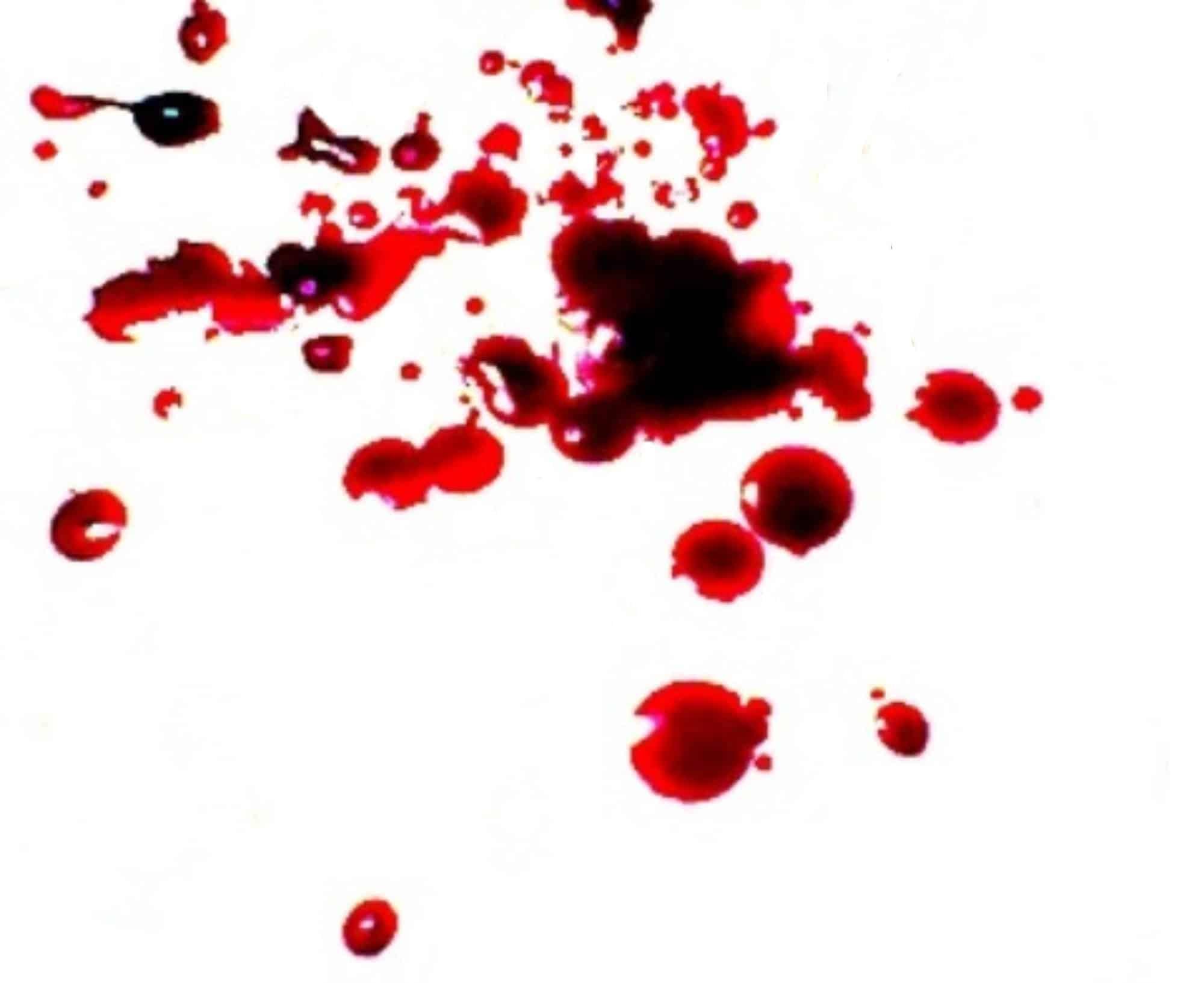 darah nifas